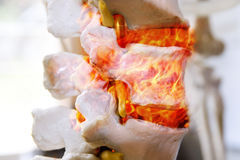 Back pain. Colorful anatomy of spine in fire Royalty Free Stock Image