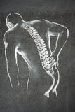 Back pain illustration Stock Image