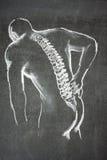 Back pain illustration stock image