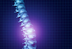 Back Spine Pain. And human backache as a skeleton showing the spine and vertebral column in glowing highlight as a medical health care concept for spinal health Royalty Free Stock Photos