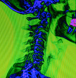 Back and spine x-ray Royalty Free Stock Photography
