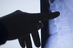 Back spine vertabrae xray scan Royalty Free Stock Images