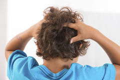 Back view of little boy Itchy Scalp from Head Lice royalty free stock photography
