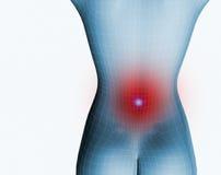 Backache. 3d image of a 3d human with backache vector illustration