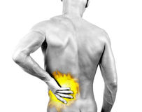 Backache - burn Stock Image