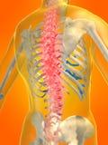 Backache illustration Stock Image