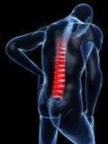 Backache illustration Stock Photo