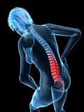 Backache illustration Stock Photo