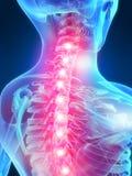 backache ilustracja Zdjęcie Royalty Free