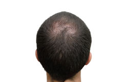 Background of bald head Stock Photo