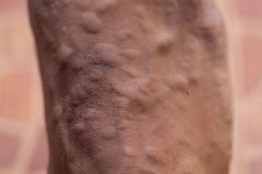 The lesion on foot after caused by ants bites Red imported fire ant. Background of lesion on foot after caused by ants bites Red imported fire ant royalty free stock photography