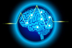 background med brain Royaltyfria Bilder