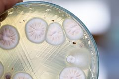 Backgrounds of Characteristics and Different shaped Colony of Bacteria and Mold growing on agar plates. Backgrounds of Characteristics and Different shaped stock image