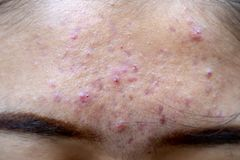 Backgrounds of lesions skin caused by acne on the face. Backgrounds of lesions skin caused by acne on the face in the clinic royalty free stock photography