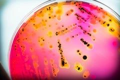 Bacteriële koloniescultuur op selectieve agar-agarmedia (SS agar-agar) Royalty-vrije Stock Fotografie