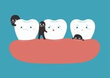 Bacteriën die tanden breken royalty-vrije illustratie