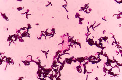 Bacteria cells with Gram stain Royalty Free Stock Photo