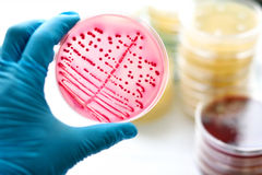 Bacteria culture. Colonies of bacteria in MacConkey agar Stock Image