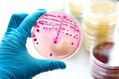 Bacteria culture. Colonies of bacteria in MacConkey agar Royalty Free Stock Photos