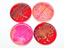 Bacteria culture Royalty Free Stock Image