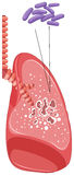 Bacteria in human lung Stock Photo