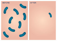 Bacteria on skin  , before after Stock Photo