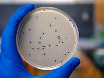 Bacterial Colonies. Researcher viewing colonies of bacteria growing on an agar plate Stock Images