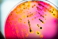 Bacterial colonies culture on  selective agar media(SS agar). Bacterial colonies culture on  selective agar media(SS agar) contains small light grains Royalty Free Stock Photography