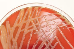 Bacterial culture on blood agar Stock Photo