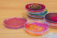 Bacterial culture growth on agar plate. Royalty Free Stock Photo