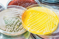Bacterial culture growth on selective media. Stock Images