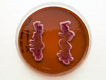 Bacterial growth on differential agar. Streaks of bacterial growth on differential agar Stock Photos