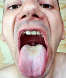 Bacterial infection disease tongue Royalty Free Stock Image