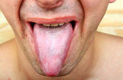 Bacterial infection disease tongue Royalty Free Stock Photos