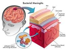 Bacterial meningitis. Medical illustration of symptoms of bacterial meningitis