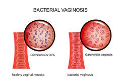 Bacterial vaginosis. the vagina and the causative agent Stock Image