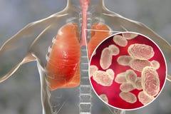 Bacterias de la tos ferina en vías aéreas humanas imagenes de archivo