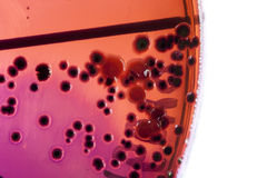 Bacteriën op petrischaal Royalty-vrije Stock Foto's