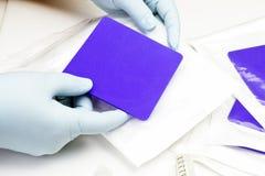 Bacteriostatische Gekronkelde Vulling stock fotografie