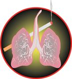 Bad habits. Human lungs, are filled by a smoke from a decaying cigarette Stock Images