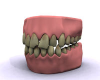Bad hygiene teeth. Teeth show bad decay and ugly coloring Royalty Free Stock Photography