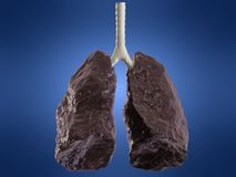 Bad lung Stock Image