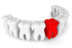 Bad red tooth Stock Photography