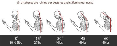 The bad smartphone postures,the angle of bending head related to the pressure on the spine, vector flat cartoon illustration. Man. With phone with neck pain vector illustration