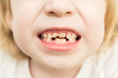 Bad teeth. Child blonde showing bad teeth royalty free stock images