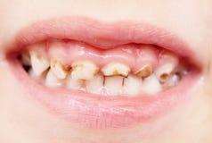 Bad teeth. Close up of bad baby teeth Royalty Free Stock Images