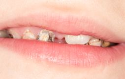 Bad teeth in the mouth. close-up.  Stock Photos