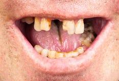 Bad teeth, smoker Royalty Free Stock Images