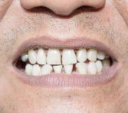 Bad teeth smoker. Select focus labia smile Bad teeth sick Royalty Free Stock Images