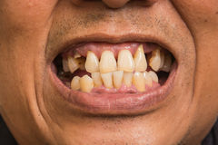 Bad teeth. Of the smoker sick Royalty Free Stock Images